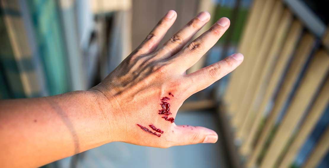 картинки укус собаки на руке составьте собственную