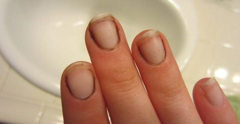 К чему снится грязь под ногтями
