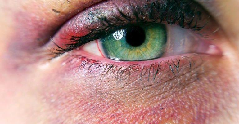 К чему снится синяк под глазом
