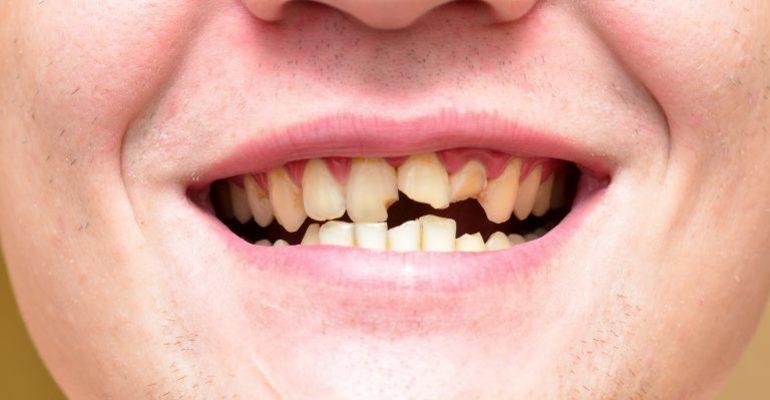 К чему снится сломанный зуб