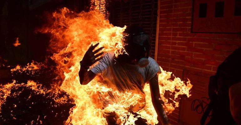 Сонник горящий человек