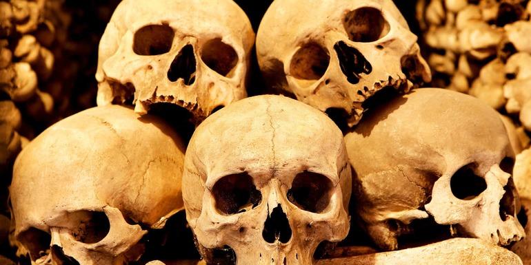 Сонник кости