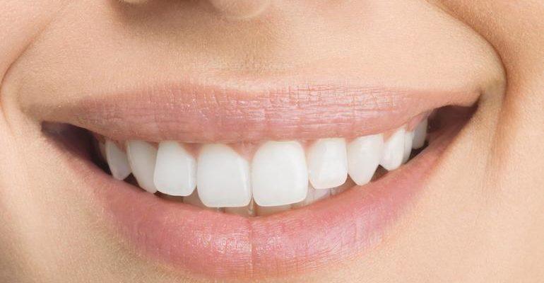 К чему снится белые зубы