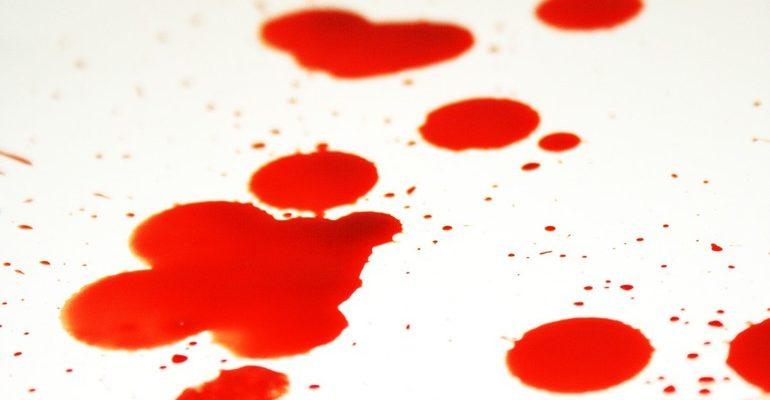 К чему снится алая кровь